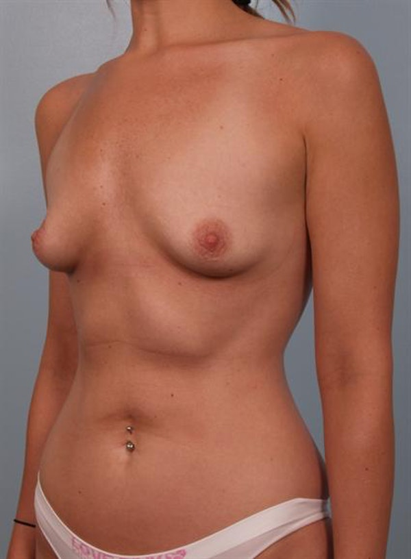Breast Augmentation Gallery - Patient 1310277 - Image 3