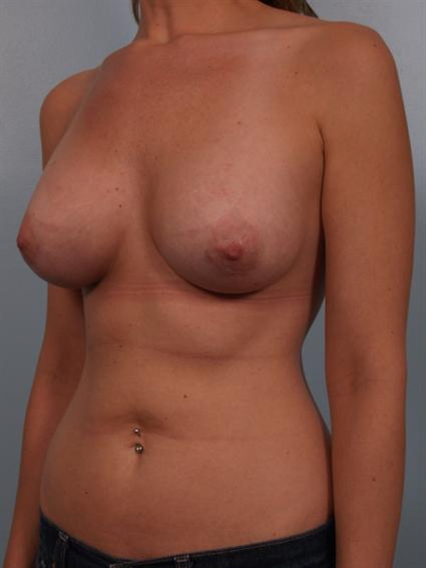Breast Augmentation Gallery - Patient 1310277 - Image 4