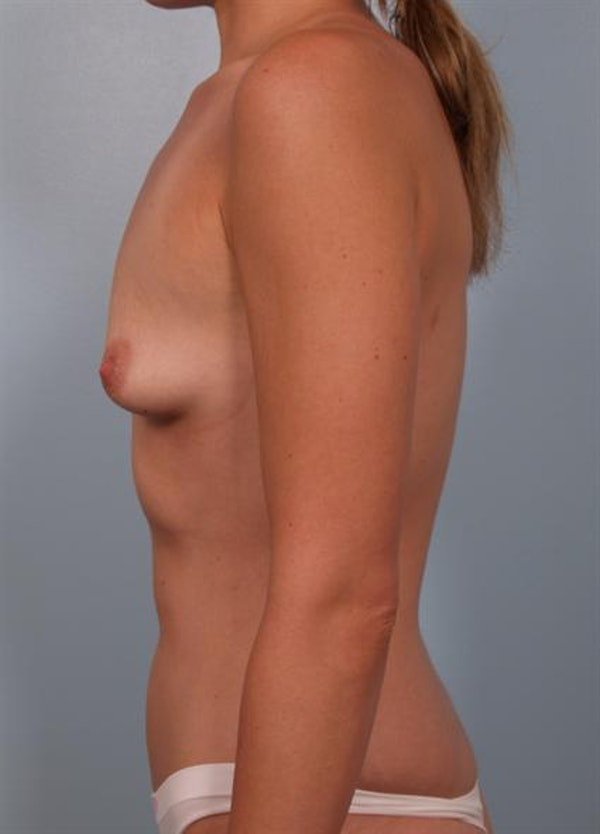Breast Augmentation Gallery - Patient 1310277 - Image 5