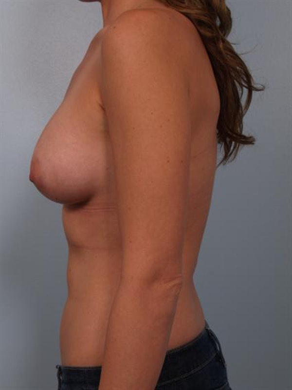 Breast Augmentation Gallery - Patient 1310277 - Image 6