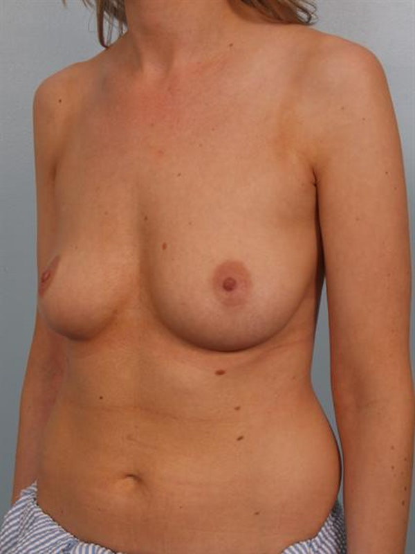 Breast Augmentation Gallery - Patient 1310278 - Image 1