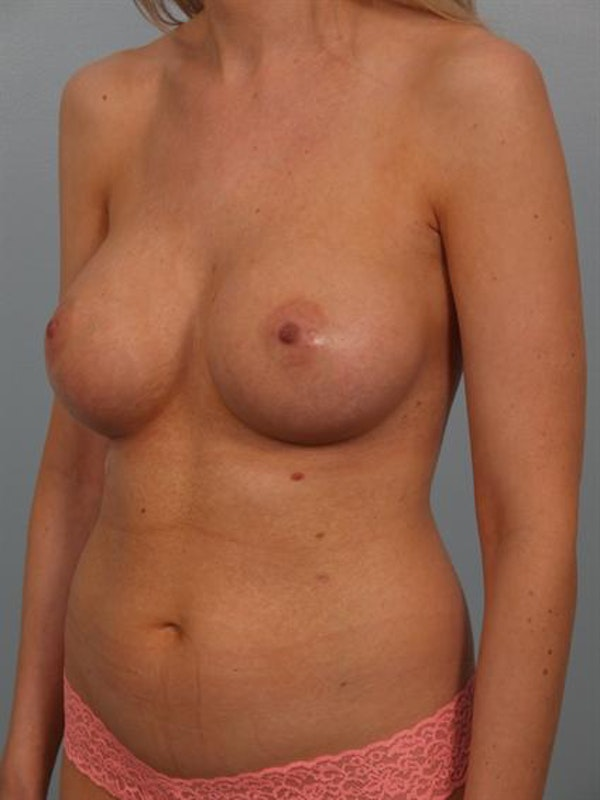 Breast Augmentation Gallery - Patient 1310278 - Image 2
