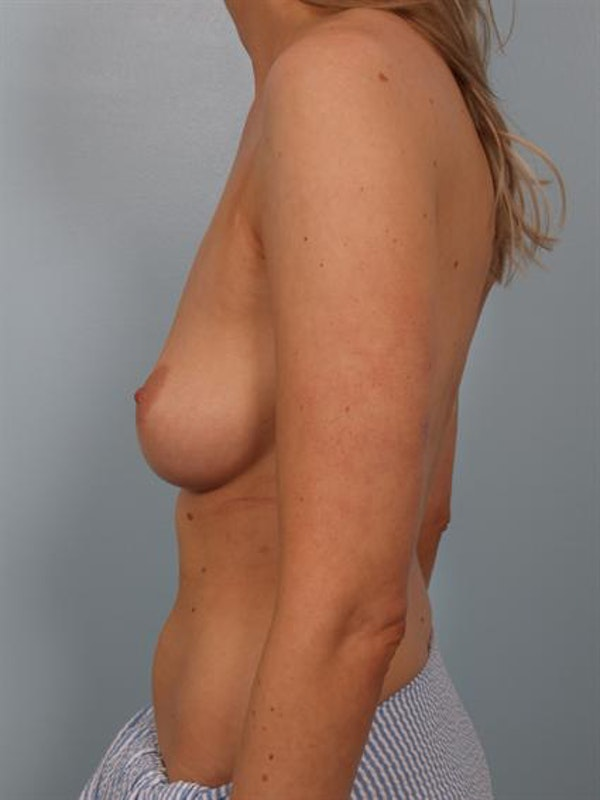 Breast Augmentation Gallery - Patient 1310278 - Image 3