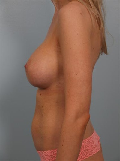 Breast Augmentation Gallery - Patient 1310278 - Image 4