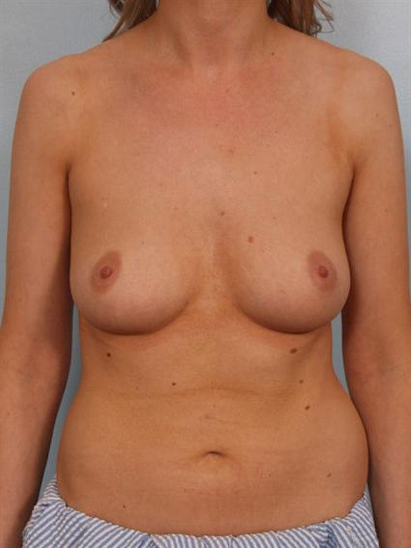 Breast Augmentation Gallery - Patient 1310278 - Image 5