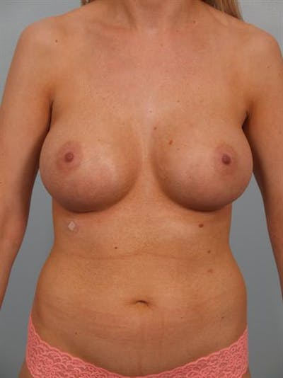 Breast Augmentation Gallery - Patient 1310278 - Image 6