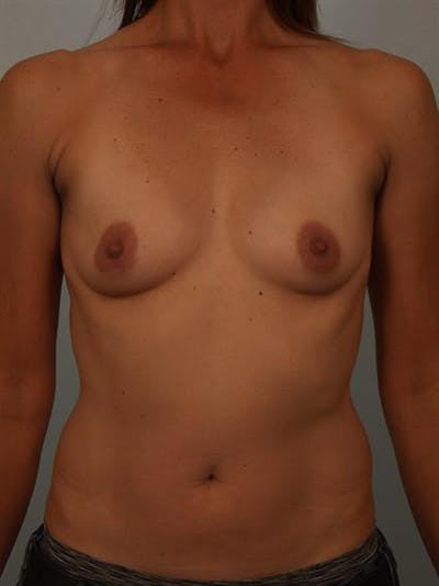 Breast Augmentation Gallery - Patient 1310280 - Image 1