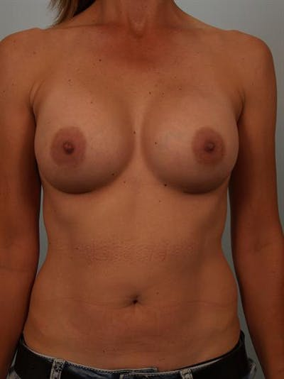 Breast Augmentation Gallery - Patient 1310280 - Image 2