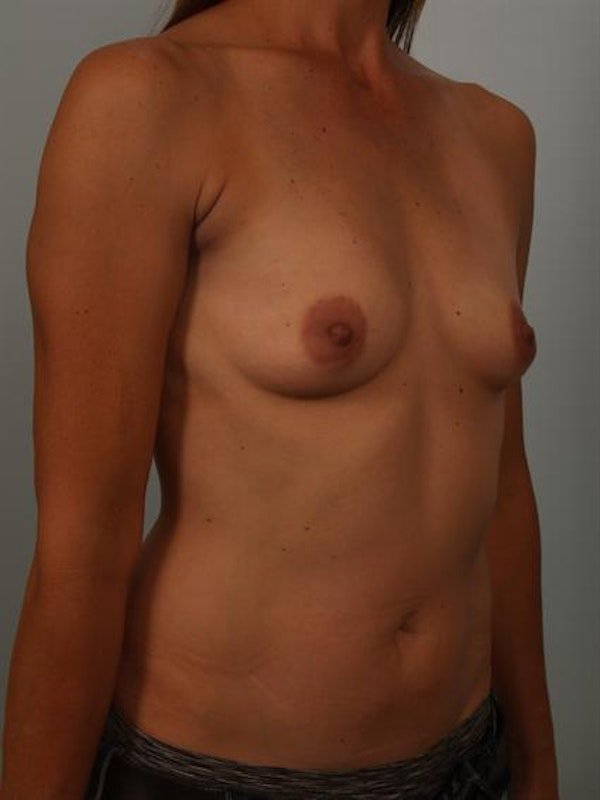 Breast Augmentation Gallery - Patient 1310280 - Image 3