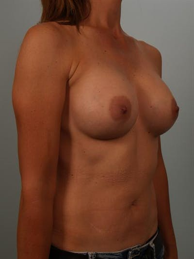 Breast Augmentation Gallery - Patient 1310280 - Image 4