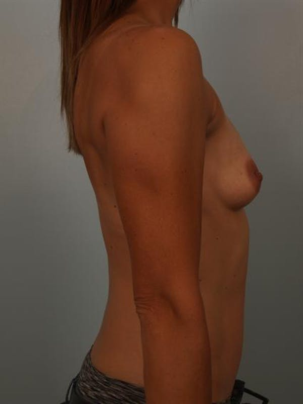 Breast Augmentation Gallery - Patient 1310280 - Image 5