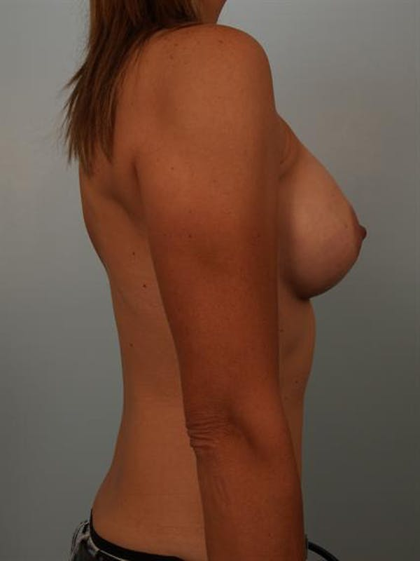 Breast Augmentation Gallery - Patient 1310280 - Image 6