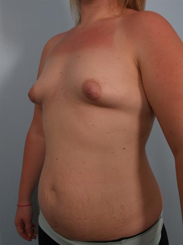 Breast Augmentation Gallery - Patient 1310281 - Image 5