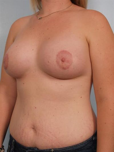 Breast Augmentation Gallery - Patient 1310281 - Image 6