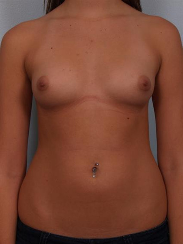 Breast Augmentation Gallery - Patient 1310282 - Image 1