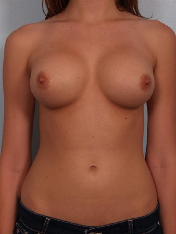 Breast Augmentation Gallery - Patient 1310282 - Image 2