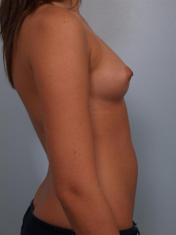 Breast Augmentation Gallery - Patient 1310282 - Image 3