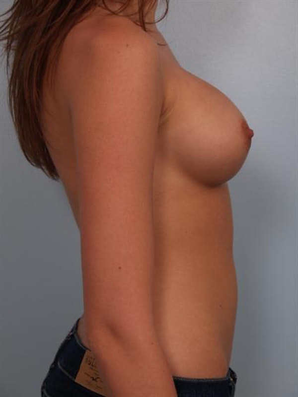 Breast Augmentation Gallery - Patient 1310282 - Image 4