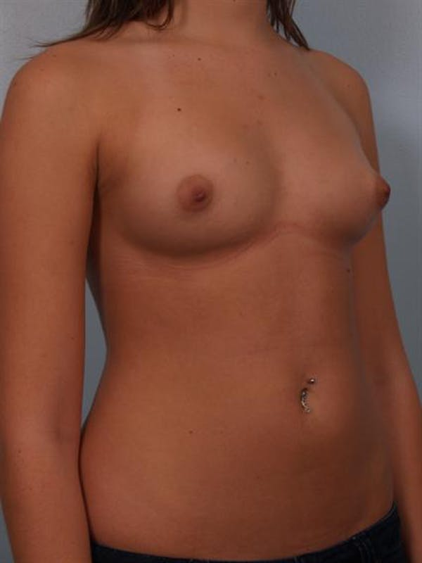 Breast Augmentation Gallery - Patient 1310282 - Image 5