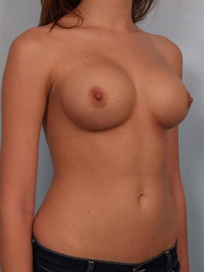 Breast Augmentation Gallery - Patient 1310282 - Image 6