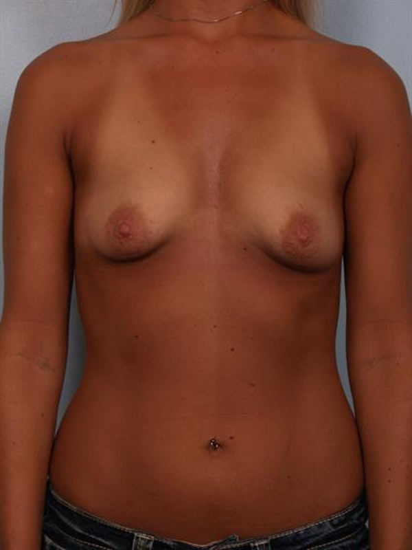 Breast Augmentation Gallery - Patient 1310284 - Image 1
