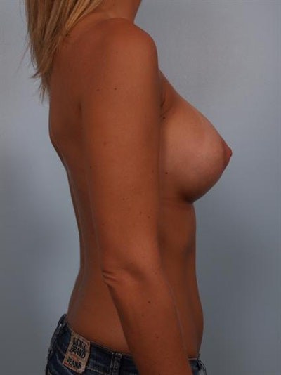 Breast Augmentation Gallery - Patient 1310284 - Image 4