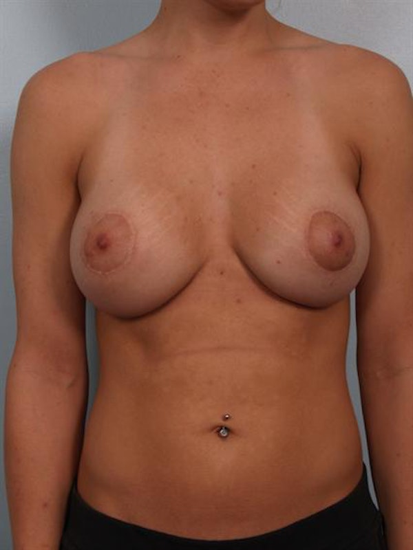 Breast Augmentation Gallery - Patient 1310287 - Image 4