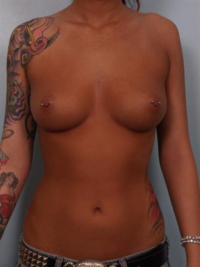 Breast Augmentation Gallery - Patient 1310288 - Image 1