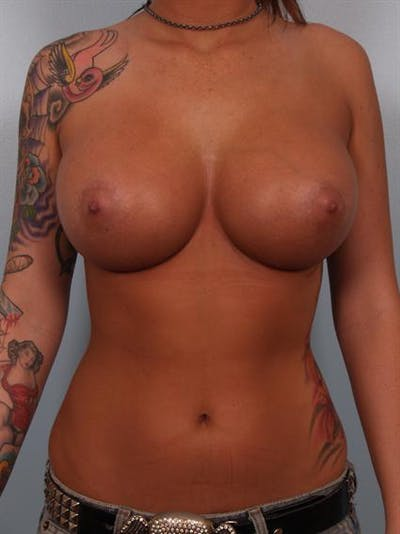Breast Augmentation Gallery - Patient 1310288 - Image 2
