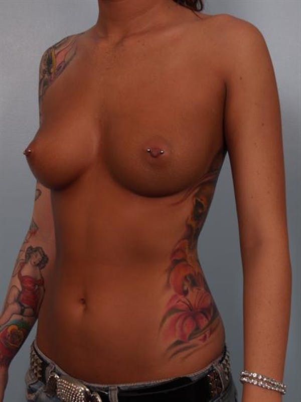 Breast Augmentation Gallery - Patient 1310288 - Image 3