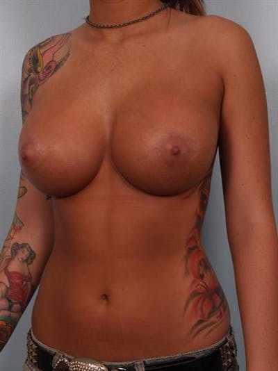 Breast Augmentation Gallery - Patient 1310288 - Image 4