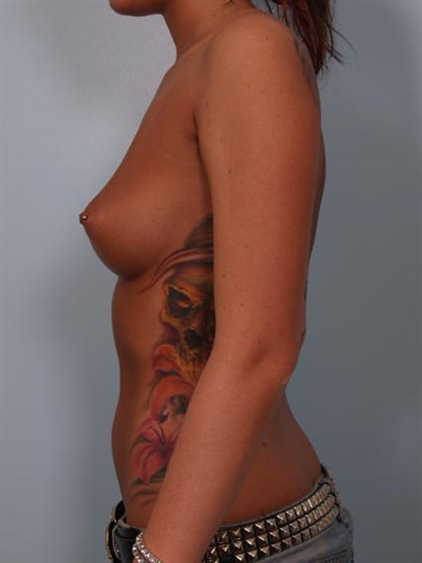 Breast Augmentation Gallery - Patient 1310288 - Image 5
