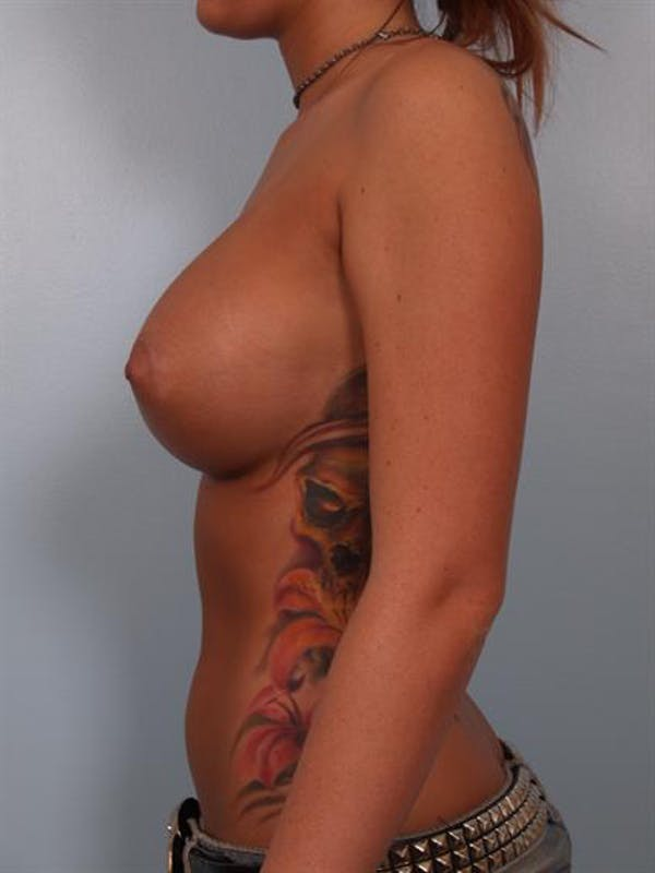 Breast Augmentation Gallery - Patient 1310288 - Image 6