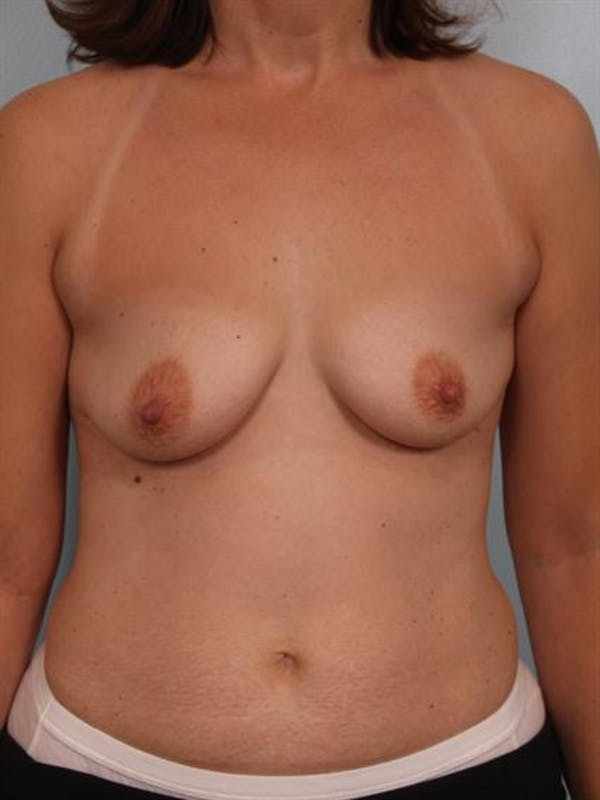 Breast Augmentation Gallery - Patient 1310289 - Image 1