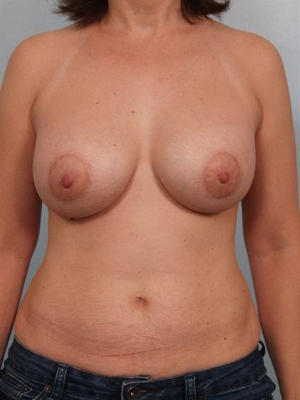Breast Augmentation Gallery - Patient 1310289 - Image 2