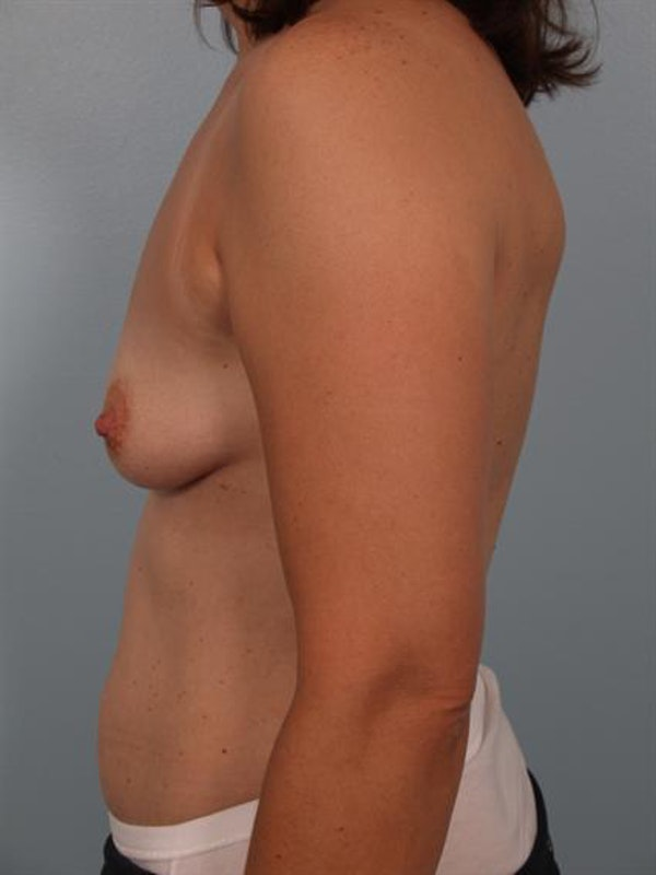 Breast Augmentation Gallery - Patient 1310289 - Image 3