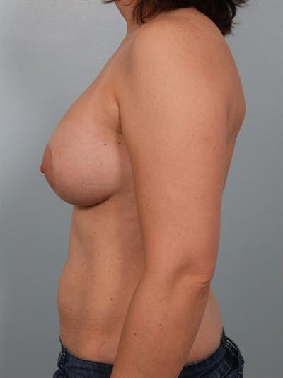 Breast Augmentation Gallery - Patient 1310289 - Image 4
