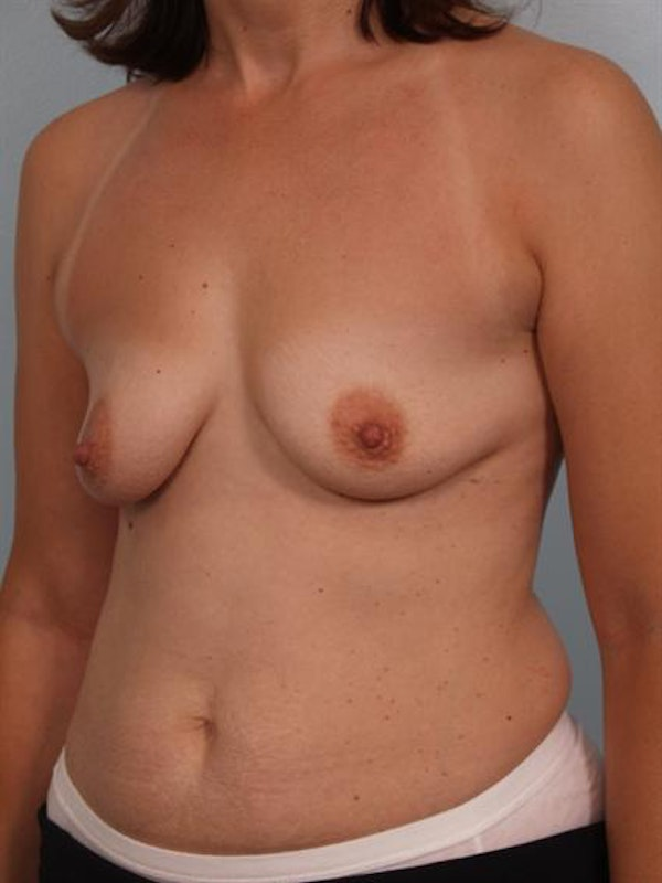 Breast Augmentation Gallery - Patient 1310289 - Image 5