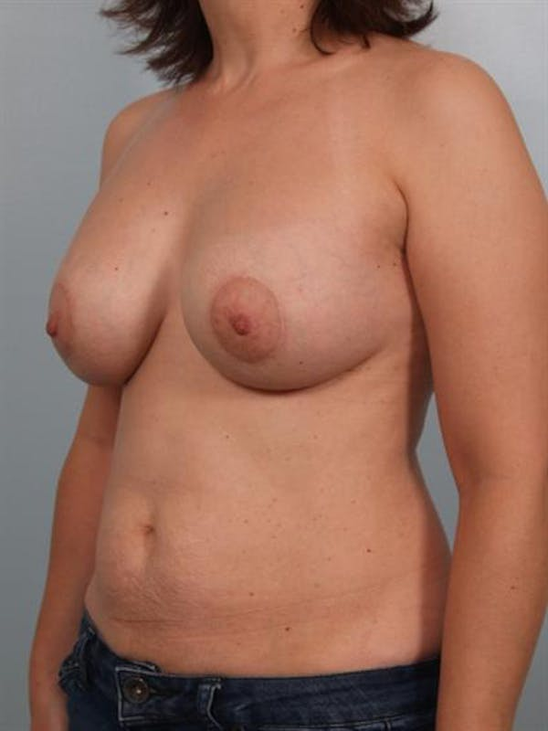 Breast Augmentation Gallery - Patient 1310289 - Image 6