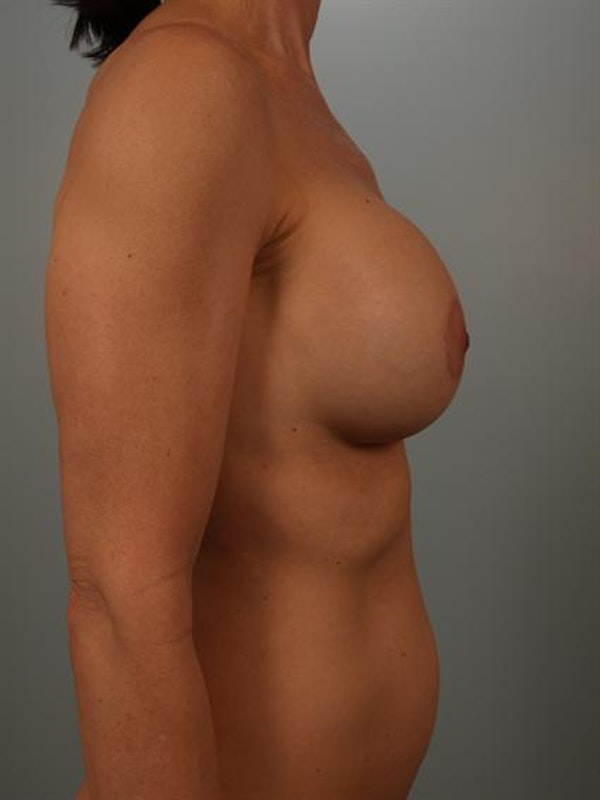Breast Augmentation Gallery - Patient 1310290 - Image 6