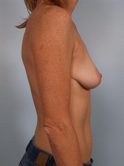 Breast Augmentation Gallery - Patient 1310291 - Image 1