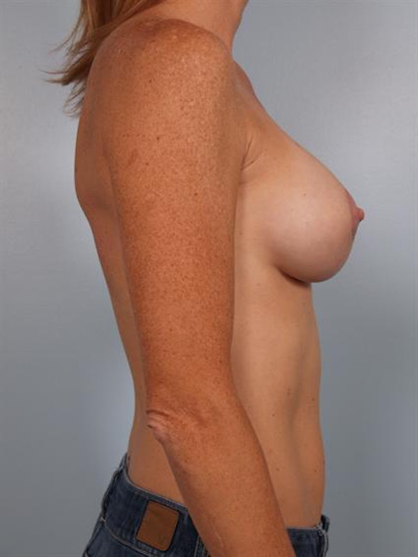 Breast Augmentation Gallery - Patient 1310291 - Image 2