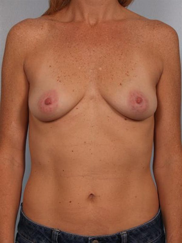 Breast Augmentation Gallery - Patient 1310291 - Image 3