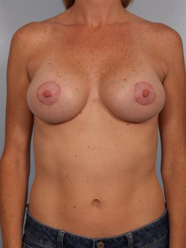 Breast Augmentation Gallery - Patient 1310291 - Image 4