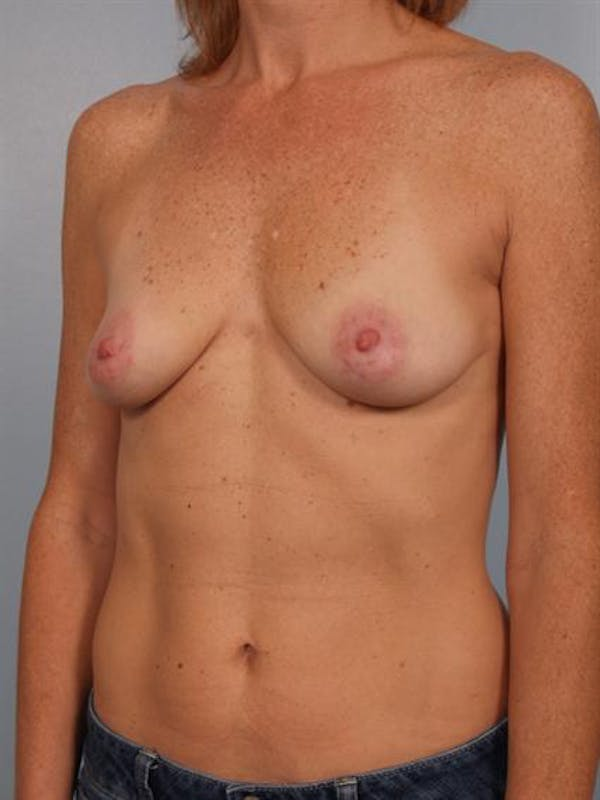 Breast Augmentation Gallery - Patient 1310291 - Image 5