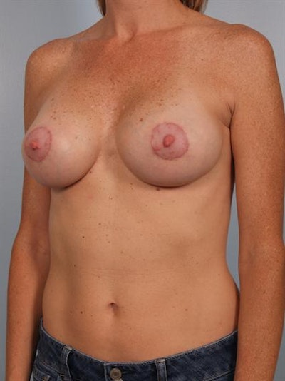 Breast Augmentation Gallery - Patient 1310291 - Image 6