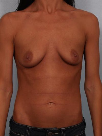 Breast Augmentation Gallery - Patient 1310293 - Image 1