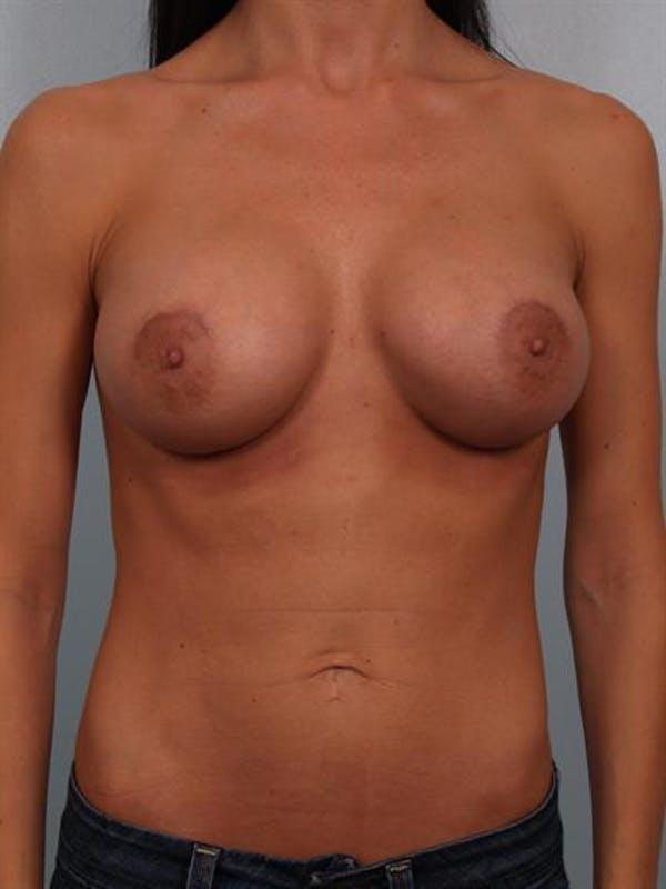 Breast Augmentation Gallery - Patient 1310293 - Image 2