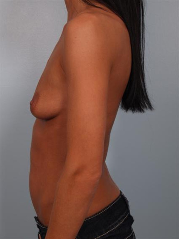 Breast Augmentation Gallery - Patient 1310293 - Image 3