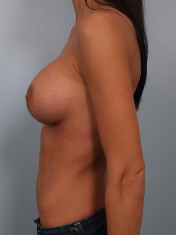 Breast Augmentation Gallery - Patient 1310293 - Image 4